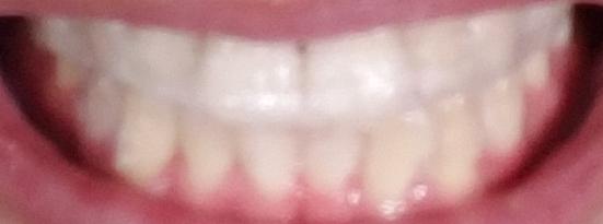 ホワイトニングテープ「クレスト 3D ホワイトストリップス プロフェッショナルエフェクト」を歯に貼っている状態
