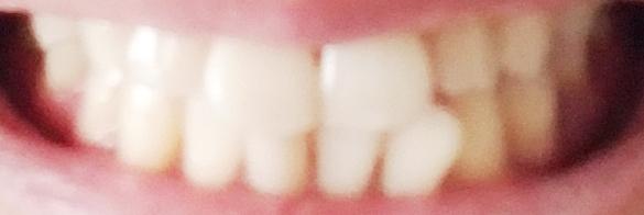 ホワイトニングテープ使用後の歯 白くなっているのが分かる